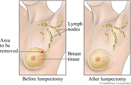 Open breast biopsy (before and after)