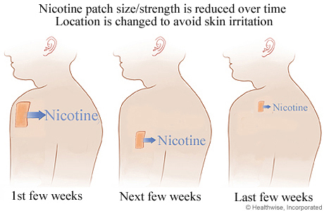Picture of nicotine patch use