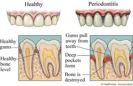 Picture of healthy gums and periodontitis (advanced gum disease)