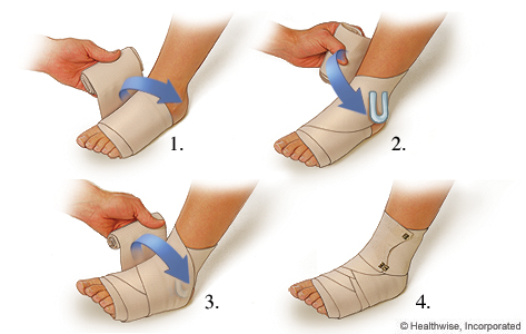 Picture of how to apply a compression wrap for a sprained ankle