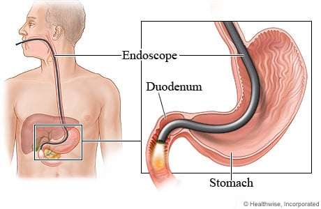 Labeled Diagram Of Endoscopy Stomach Wiring Circuit