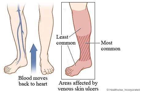 Picture of leg and foot areas affected by venous skin ulcers