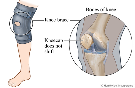 Picture of a knee brace to keep the kneecap from shifting