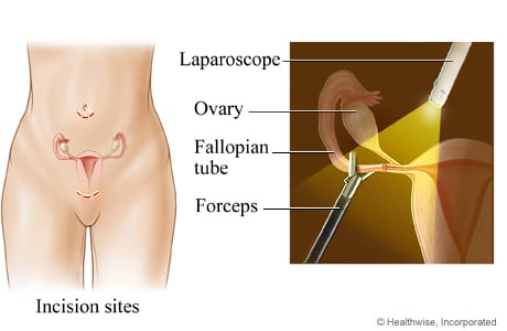Picture of laparoscopic tubal ligation for female sterilization