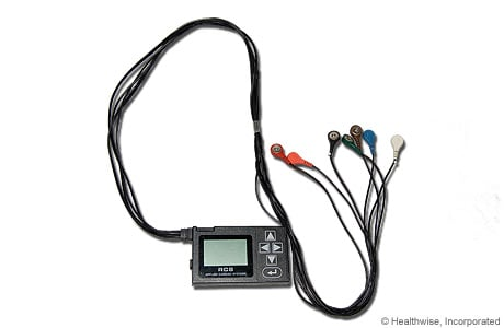 Picture of a Holter monitor
