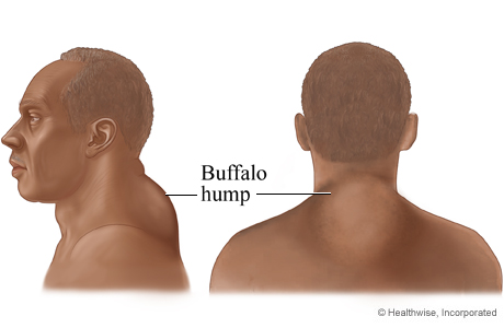 Picture of a buffalo hump associated with Cushing's syndrome