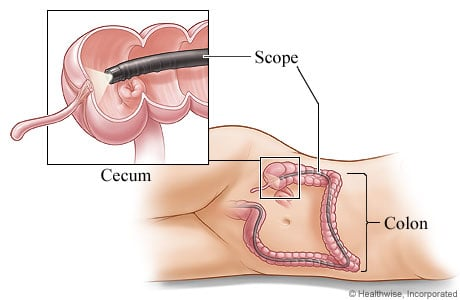 Picture of a colonoscope in the colon