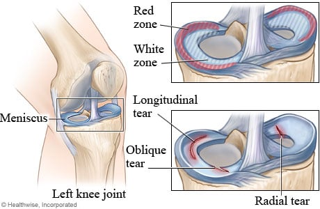 Meniscus healing zones and types of meniscus tears
