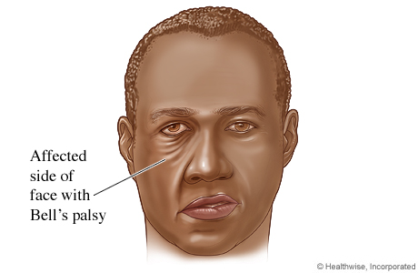 Picture of how facial muscles are affected by Bell's palsy