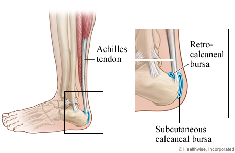 Retrocalcaneal and subcutaneous calcaneal bursa