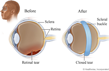 Picture of a retinal tear and a scleral buckle