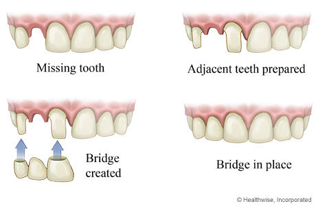 How a bridge is put in for a missing tooth
