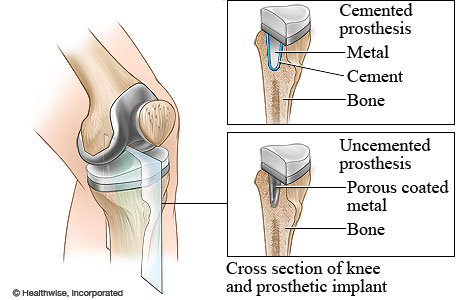 Cemented and uncemented prosthetics