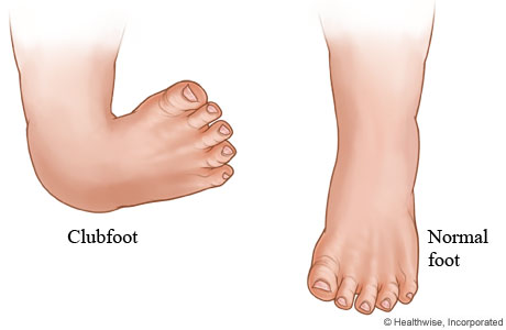 Clubfoot and normal foot