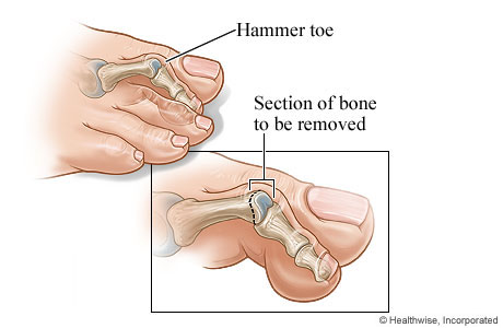 Picture of a hammer toe and the section of bone to be removed