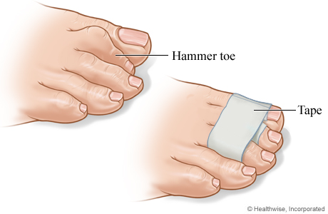 Picture of a wrapped hammer toe