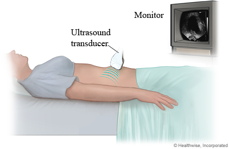 Picture of a woman having a pelvic ultrasound