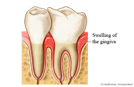 Picture of gingivitis