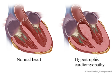 Heart cross section showing hypertrophic cardiomyopathy