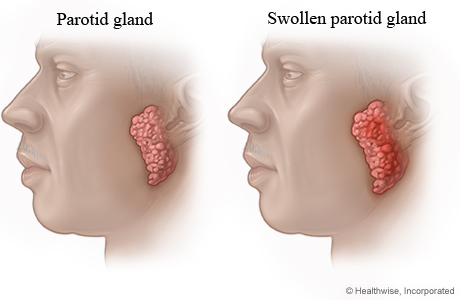 Normal parotid gland and swollen parotid gland