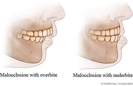 Malocclusion with overjet and with underbite