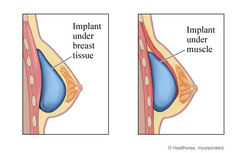 Picture of a breast implant