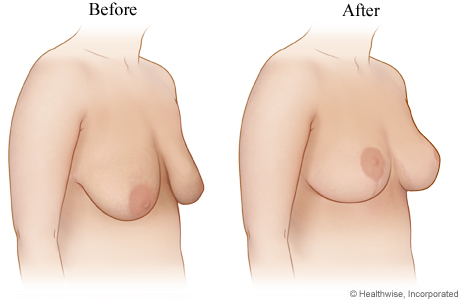 Picture of breast lift (before and after)