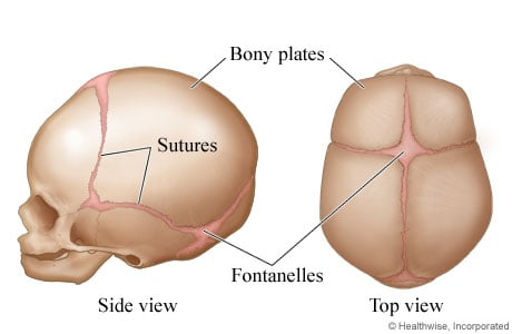 Picture of skull sutures and bony plates in fetuses and infants