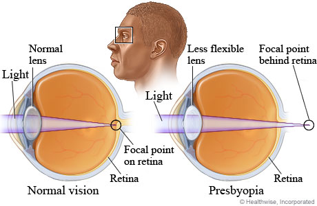 Picture of normal vision compared to presbyopia
