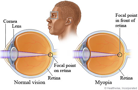Picture of normal vision and myopia (nearsightedness)