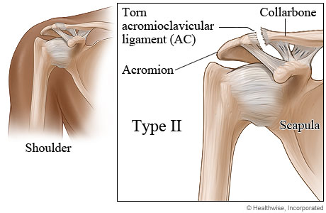 Picture of type II shoulder separation