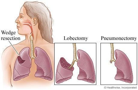 Picture of three types of lung surgery