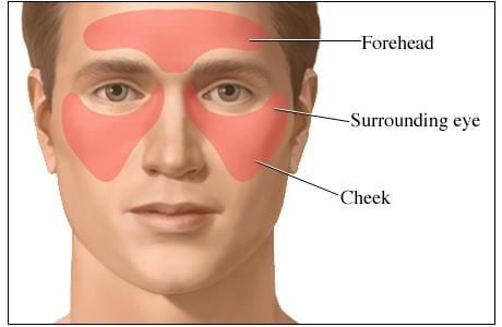 Picture of sinus headache: areas of pain