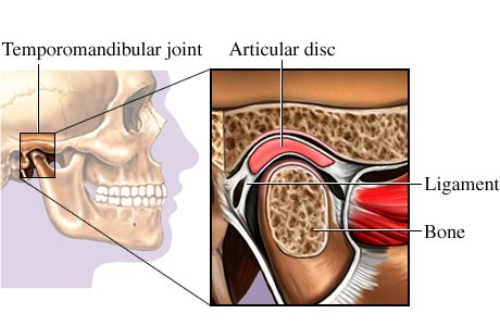 Picture of the temporomandibular joint (TMJ)