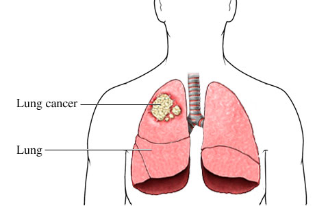 Picture of cancer cells in the upper lobe of the right lung