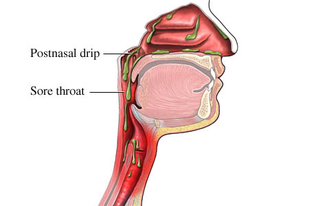 Picture of a sore throat caused by postnasal drip
