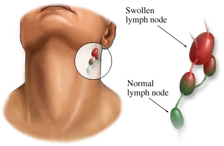 Picture of swollen glands (lymph nodes) and normal lymph node