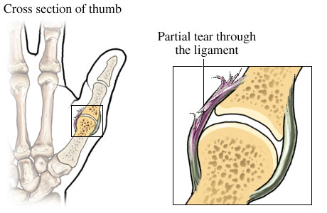 Moderate sprain of ulnar collateral ligament of the thumb