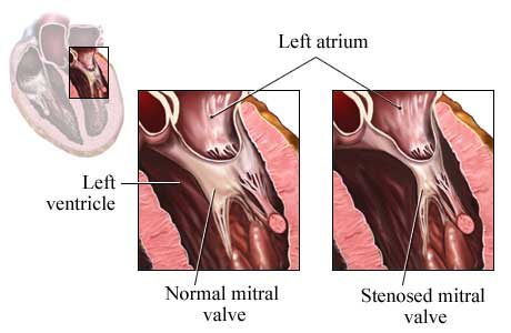 Picture of a normal mitral valve and a mitral valve with stenosis