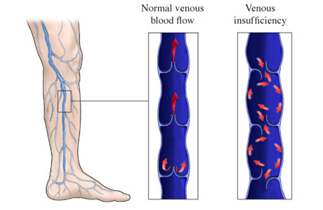 Picture of venous insufficiency