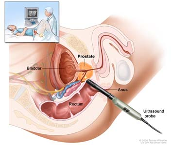 Transrectal ultrasound; drawing shows a side view of the male reproductive and urinary anatomy including the prostate, anus, rectum, and bladder; also shows an ultrasound probe inserted into the rectum to check the prostate. Inset shows patient lying on back on a table having a transrectal ultrasound procedure.