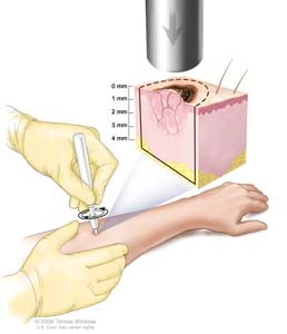 Punch biopsy; drawing shows a hollow, circular scalpel being inserted into a lesion on the skin of a patient's forearm. The instrument is turned clockwise and counterclockwise to cut into the skin and a small sample of tissue is removed to be checked under a microscope. The pullout shows that the instrument cuts down about 4 millimeters (mm) to the layer of fatty tissue below the dermis.