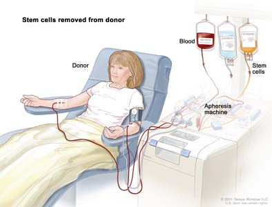 Drawing of stem cells being removed from a patient or donor. Blood is collected from a vein in the arm and flows through a machine that removes the stem cells; the remaining blood is returned to a vein in the other arm.
