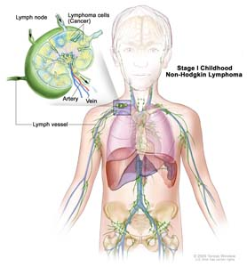 Stage I childhood non-Hodgkin lymphoma; drawing shows cancer in one group of lymph nodes. An inset shows a lymph node with a lymph vessel, an artery, and a vein. Lymphoma cells containing cancer are shown in the lymph node.