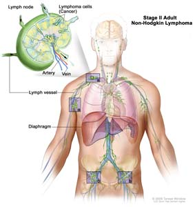 Stage II adult non-Hodgkin lymphoma; drawing shows cancer in lymph node groups above and below the diaphragm. An inset shows a lymph node with a lymph vessel, an artery, and a vein. Lymphoma cells containing cancer are shown in the lymph node.
