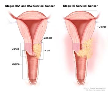 Stage II cervical cancer; drawing shows a cross-section of the uterus, cervix and vagina. In stages IIA1 and IIA2, cancer that is 4 cm is shown in the cervix and in the upper third of the vagina. In stage IIB, cancer is shown in the cervix, the upper two thirds of the vagina, and in the tissues around the uterus.