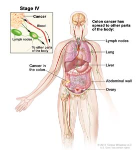 Stage IV colon cancer; shows other parts of the body where colon cancer may spread, including lymph nodes, lung, liver, abdominal wall, and ovary. Inset shows cancer spreading through the blood and lymph nodes to other parts of the body.