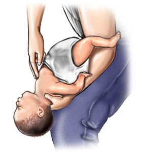 Picture of choking rescue procedure (Heimlich maneuver) with baby faceup