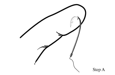 Illustration of the alternate method of fish hook removal.
