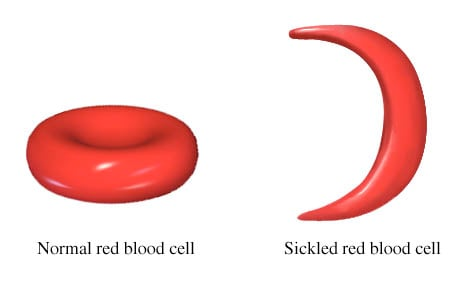 Picture of normal blood cell and sickled blood cell